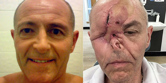 """Graeme said he and his doctor initially thought his watery eye was a symptom of conjunctivitis or """"dry eye."""""""