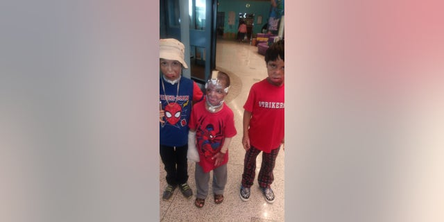 Syrian children are given life-saving treatment in the U.S. thanks to BCRF and Shriners Hospital
