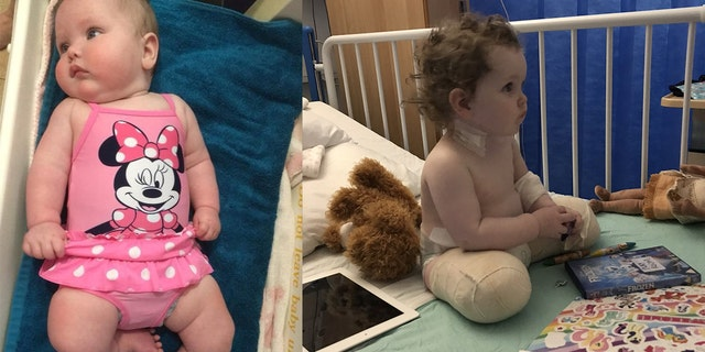 Freya's parents said they weren't given her formal diagnosis until two weeks after birth, and after researching options decided early amputation was the best course for their daughter.