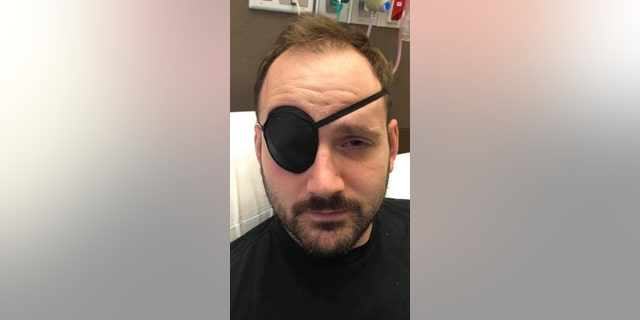 He wore an eye patch to treat blurry and double vision