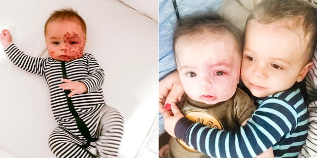Leo, pictured left after a laser treatment and right with his older brother Leo, was diagnosed with Sturge-Weber Syndrome (SWS) after doctors noticed a large birthmark covering half of his face when he was born.