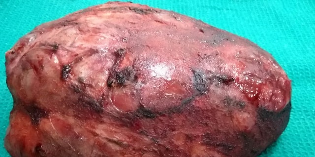 The tumor weighed 11 pounds and took 10 hours to remove.