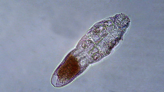 Face mites feast on skin oils, mate while you sleep
