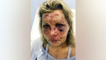 Delaware woman sues luxury resort in Dominican Republic for $3 million over alleged attack