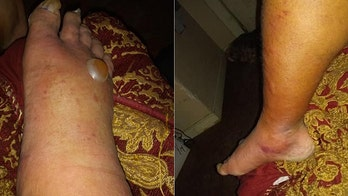 Texas man contracts severe bacterial infection after dipping toes in water