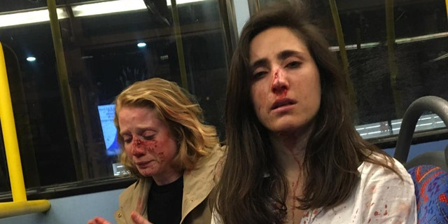 Women 'Aren't Scared To Be Visibly Queer' After Homophobic Bus Attack