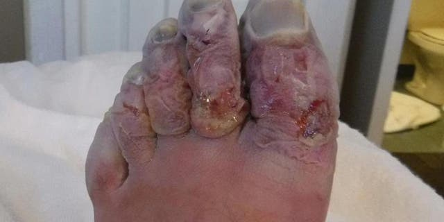 Griffith's toes were removed upon further treatment in England.