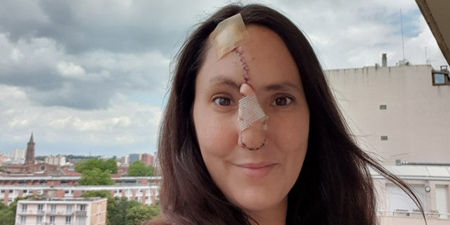 Seguy, pictured seven days after her second surgery which grafted skin from her forehead to her nose.