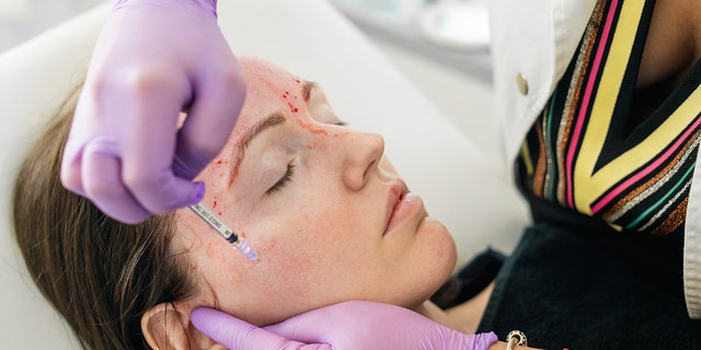 Vampire facials, officially known as Platelet Rich Plasma (PRP) therapies, involves extracting platelets from a client's blood and injected those platelets back into the patient's face through micro-needling for what some believe to be rejuvenative purposes.