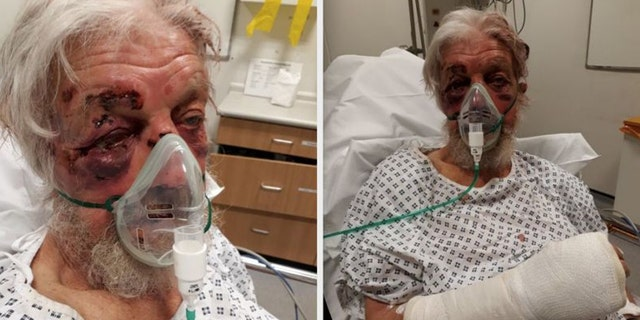"Paul Eva, 80, sustained serious injuries after being struck in what police described as a ""nonsensical"" attack in April."