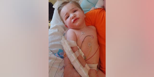 The toddler developed a rash after he was bitten by a tick infected with RMSF, his mother said. (Kayla Oblisk)