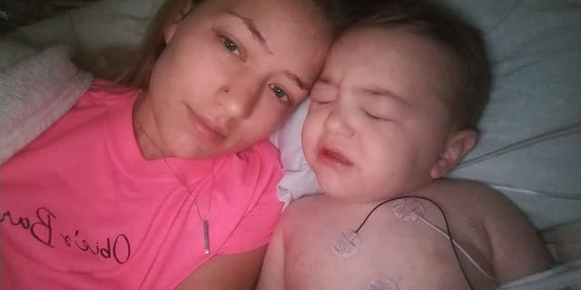 Jackson, 2, was in the intensive care unit after developing Rocky Mountain spotted fever.