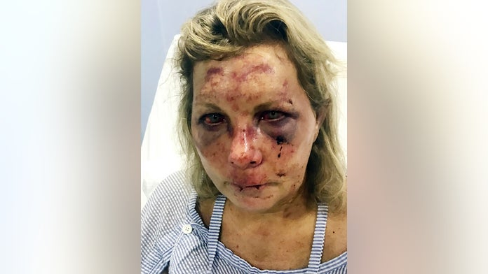 Dominican resort claims US tourist went public with assault allegation after it refused her demand for $2.2...