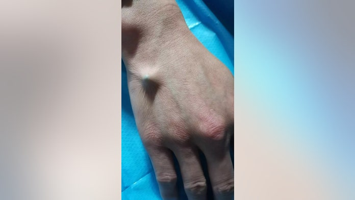 Man needs chopstick surgically removed from hand after attempting beer bottle trick, doc says