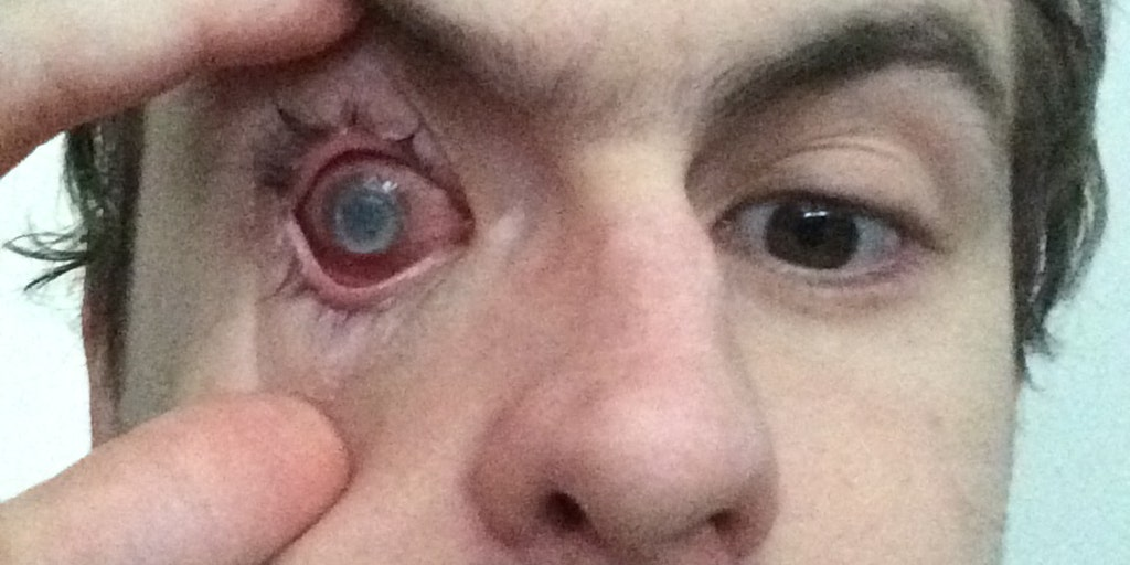 Man Blinded By Parasite After Showering With Contacts In Fox News