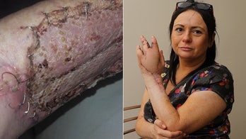 Woman loses finger, 'could've died' after cat scratch triggers major infection