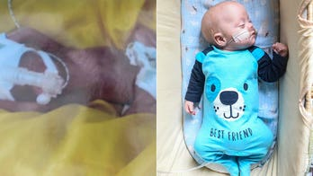Baby born weighing less than 2 pounds defies odds