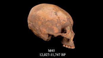 12,000 years ago, a boy had his skull squashed into a cone shape