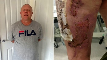Man said vape pen exploded 'like a rocket,' left him with severe leg burns