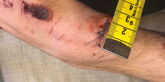 This undated photo made available by the Swedish Police via the Swedish Court, shows an injury sustained by Mustafa Jafari, the alleged victim involved in a fight with rapper A$AP Rocky.