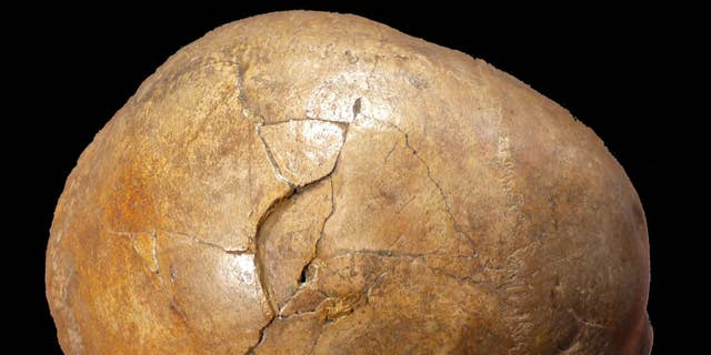 Right parallel perspective of a skull, that exhibits a vast vexed fracture. (Kranoti et al, 2019)