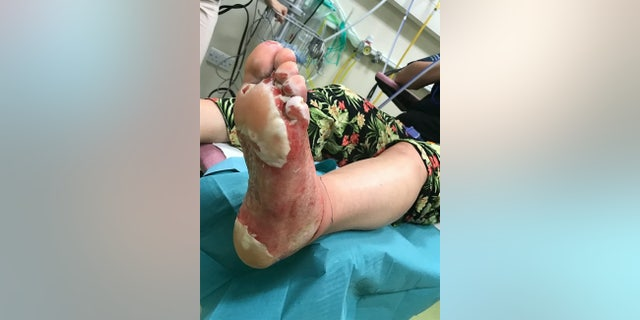 Westlake Legal Group bbq-blunder-pho-381200-1 Mom suffers severe foot burns after stepping on sand under 'cold' disposable barbecue fox-news/health/medical-research/surgery fox-news/health/beauty-and-skin fox news fnc/health fnc b4c5e33c-21d5-57a2-bdd9-d2930d24692a article Alexandria Hein
