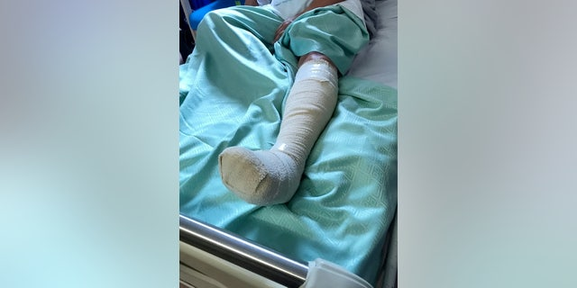 She said she now faces a months-long recovery and is warning others about barbecuing safety.