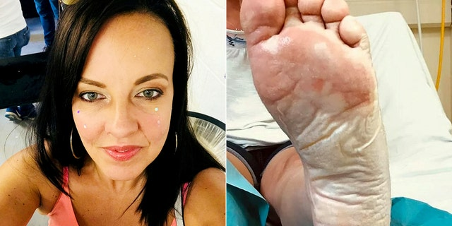 Westlake Legal Group mom_bbq_burn Mom suffers severe foot burns after stepping on sand under 'cold' disposable barbecue fox-news/health/medical-research/surgery fox-news/health/beauty-and-skin fox news fnc/health fnc b4c5e33c-21d5-57a2-bdd9-d2930d24692a article Alexandria Hein