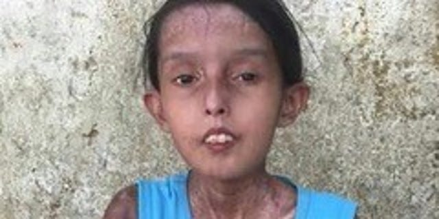 Dailis, age 15 has on-going systemic sclerosis lives in a encampment 3 hours outward of Caracas in a single-mother household. She is also pang from serious malnutrition, is so diseased that she can't walk, and is hardly means to talk.