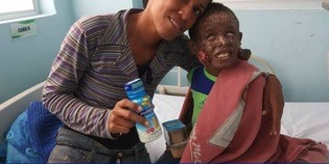 Mariano, 6, has skin cancer on his face is living in a destitute hospital in Caracas. His mother has to apply medicinal cremes to his body every six hours. He is not blind, but his eyes are constantly drying out, so he must regularly receive eye drops.