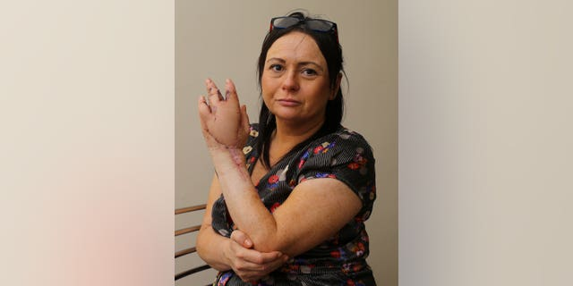 She lost a finger and has already undergone two skin grafts, but faces more procedures in the future.