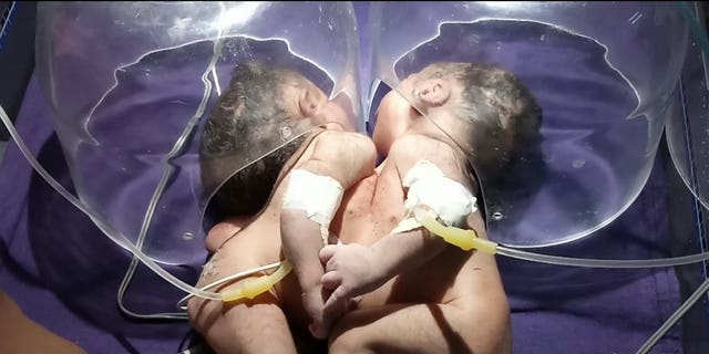 The twin girls, who have not been named yet, are joined from their chests to their stomachs.