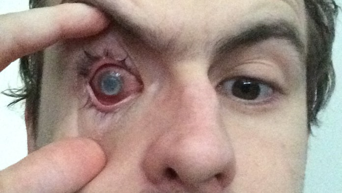 Man blinded by parasite after showering with contacts in