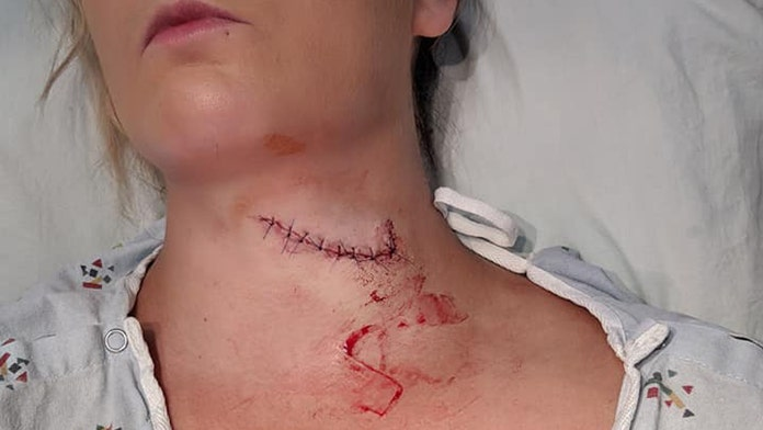 South Dakota woman survives freak lawn mower accident that left her neck sliced open