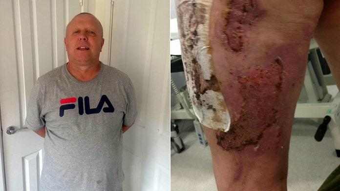 Man said vape pen exploded 'like a rocket,' left him with severe leg burns