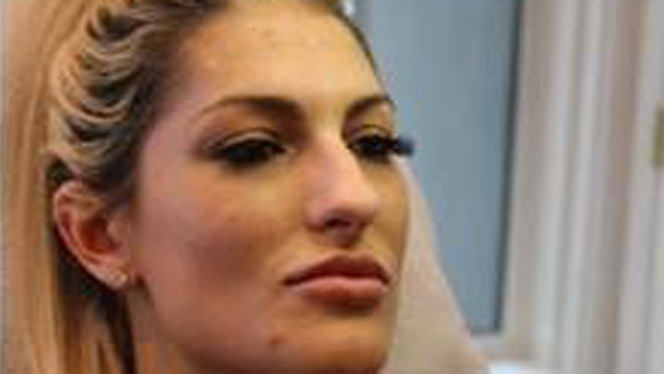 Washington woman dubbed the 'Botox Bandit' wanted for