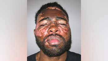 Alabama woman severely burned alleged burglar's face by throwing pot of hot grease on him: report