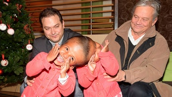 Twin girls conjoined at head successfully separated by doctors