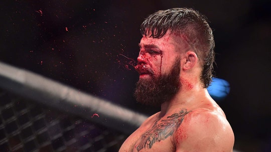 UFC fighter has nose shattered and disfigured following gruesome fight