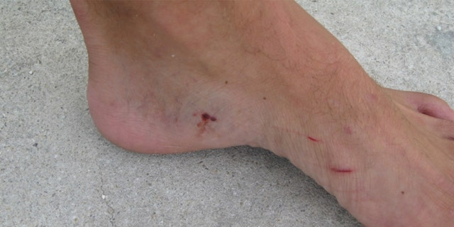 The man suffered bites to his foot and a scratched leg.