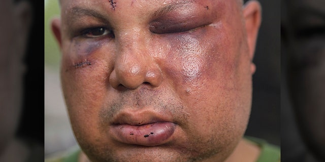 This 2018 photo shows beating victim Jorge Gomez. (Matthew Hinton/The Times-Picayune/The New Orleans Advocate via AP)