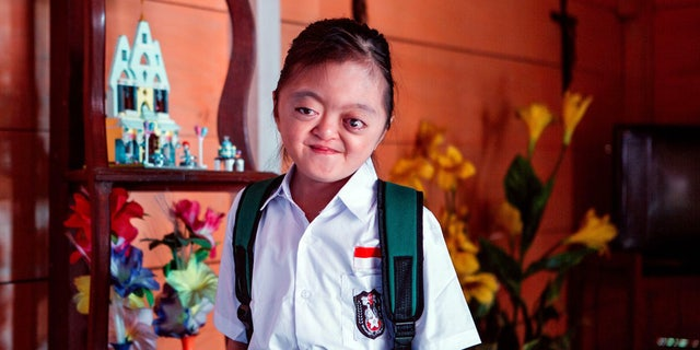 Karunia was born with Apert Syndrome, a rare congenital condition that left her without fingers and toes, but, despite her condition and bullying from her peers, she is full of joy and changing the way her community cares for others.