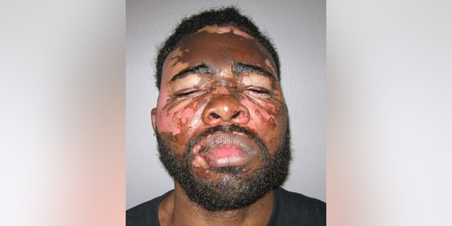 Larondrick Macklin faces two felony counts of domestic violence and burglary after being doused in hot grease after allegedly breaking into a woman's home.