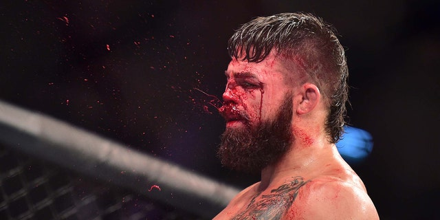 Blood is seen spraying off the face of Mike Perry as he reacts to his fight against Vicente Luque during UFC Fight Night at Antel Arena. Jason Silva-USA TODAY Sports