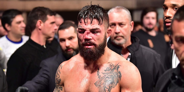 A look at Mike Perry's disfigured nose following his Aug. 10 UFC fight against Vicente Luque at Antel Arena in Uruguay. Jason Silva-USA TODAY Sports