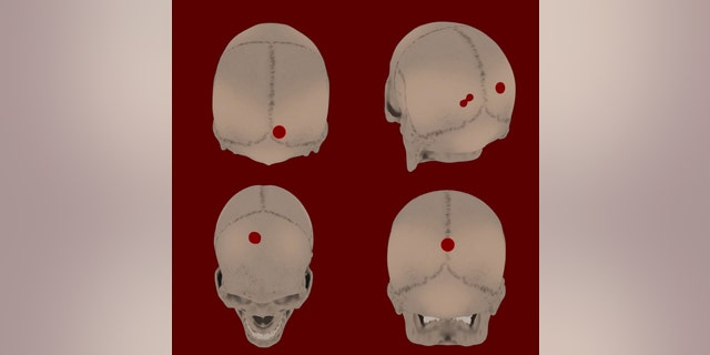 Holes had been made in the skulls, indicating that they may have been tied together with rope and put on display.