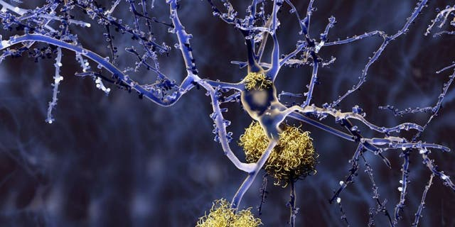 Researchers say the test would analyze the levels of specific amyloid proteins, believed to be an indicator of Alzheimer鈥檚. Together with other factors, including age and genetics, the researchers say their test is 94 percent accurate.