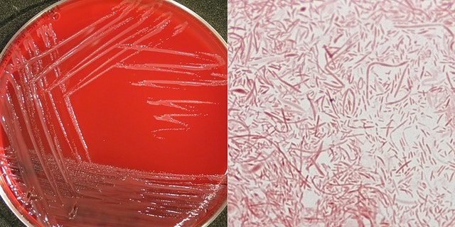 Capnocytophaga, normal bacteria found in the mouths of people, dogs and cats. Exposure through contact usually is not serious, but in rare cases, can lead to serious infections, including sepsis.