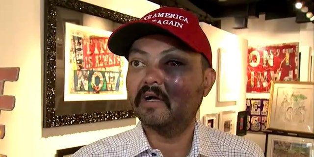 "Jahangir Turan claims he was assualted Tuesday night for wearing a ""Make American Great Again"" hat that he had purchased earlier that day."