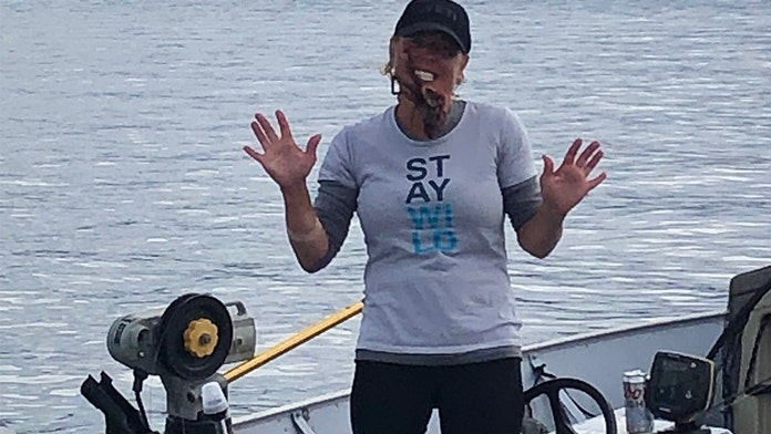 Posing with octopus on face sends Washington woman to hospital